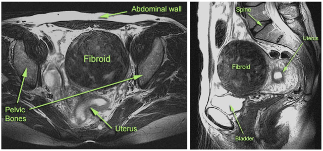 Left: An MRI axial or cross sectional scan. Right: An MRI sagital view of the pelvis. An MRI gives clinicians a reproducible, detailed picture of how many fibroids there are, how big they are and exactly where they are located. Not all women with fibroids need an MRI. All patients that are being evaluated for a uterine artery embolization will get an MRI.