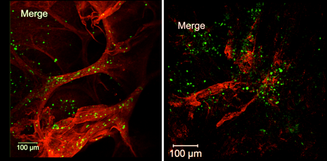 Dendritic cells (green) enter dermal lymphatic vessels (red) of normal mice (left) but not mice missing LYVE-1 (right).