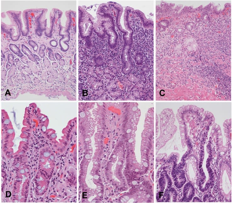 A to F shows the increasing change of structure to existing gastric epithelium, as a result of prolonged H. pylori infections. (A) The normal gastric epithelium is organised in invaginations called glands. (B) A remarkable increase in size is observed in the inflamed stomach after H.pylori infection, a condition called chronic gastritis. (C) Atrophic gastritis, a precancerous condition with a higher chance of leading to cancer: the glandular structure is lost. (D) The emergence of a new type of gland with different features: a condition known as intestinal metaplasia to cancer. (E-F) The progression from dysplasia to cancer.