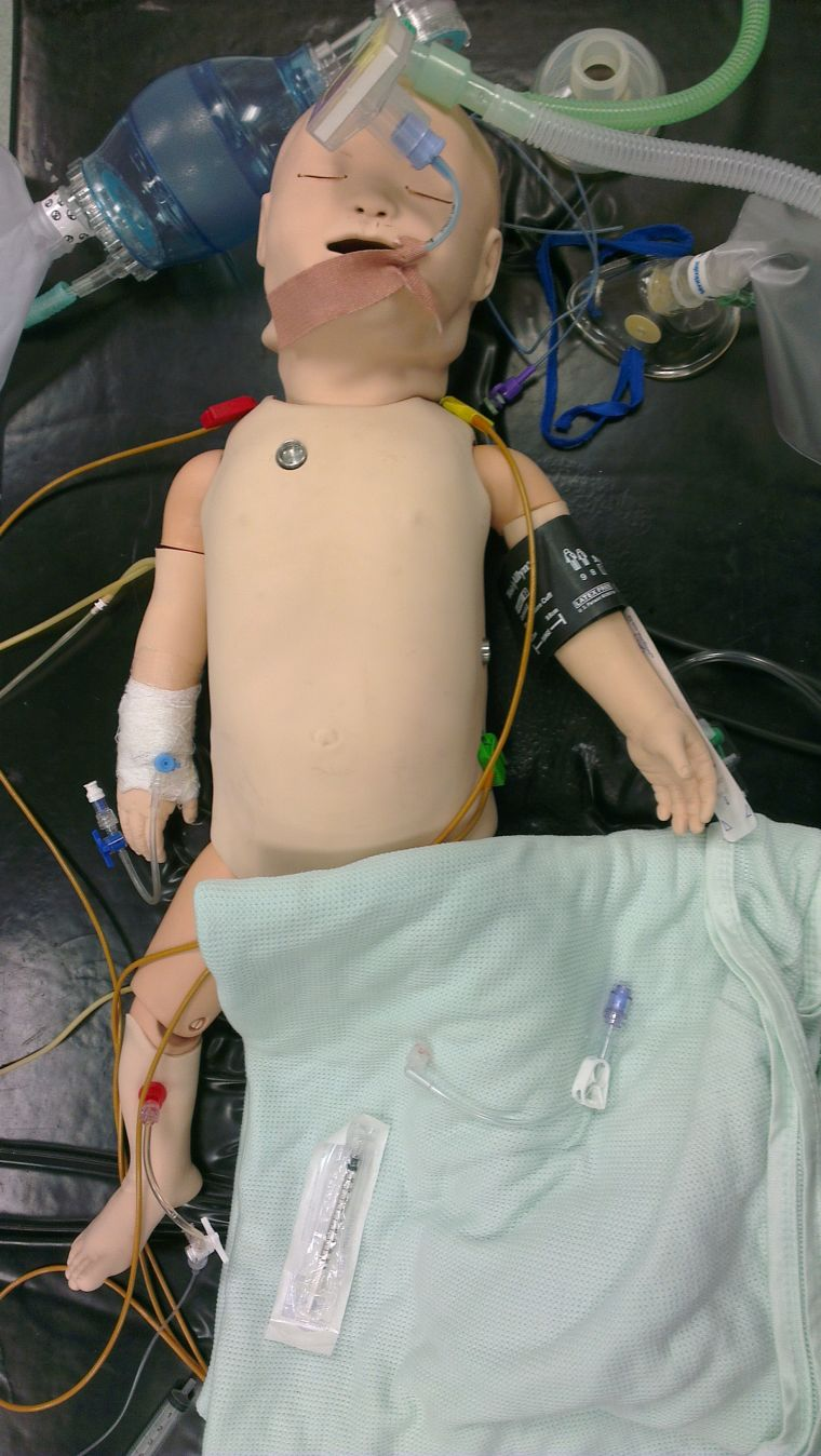 Mepa 2013 managing emergencies in paediatric anaesthesia