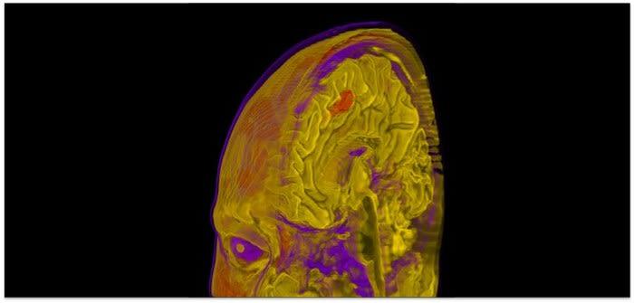 Cognitive neurology research group prof masud husain
