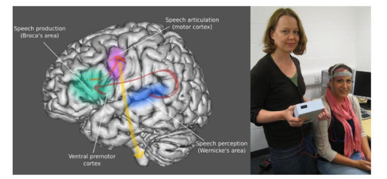 Stroke and Aphasia Model