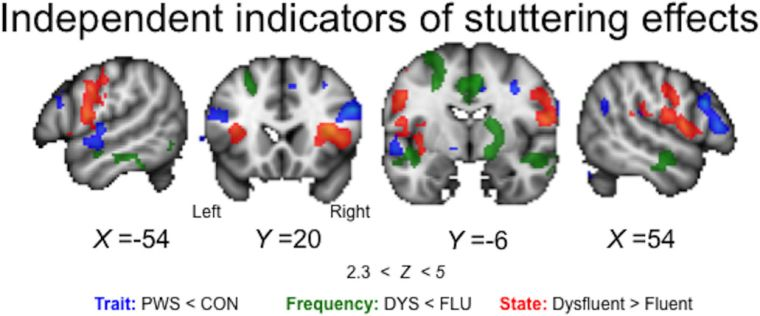 New paper on state and trait effects in imaging of people who stutter
