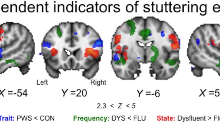 State and trait effects in fmri of pws