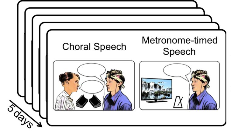 Electrical brain stimulation can improve speech fluency for adults who stutter