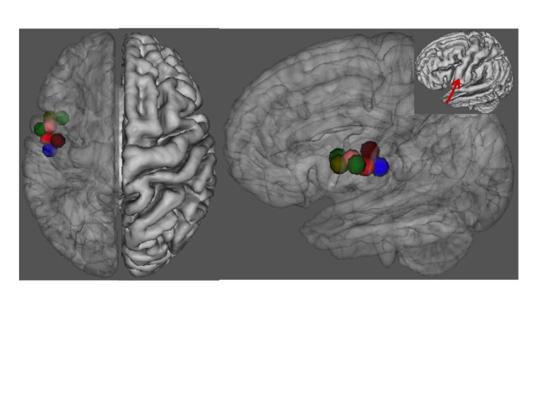 Article on structural brain differences in people who stutter