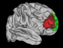 An area of the brain that seems to be unique to humans (in red)