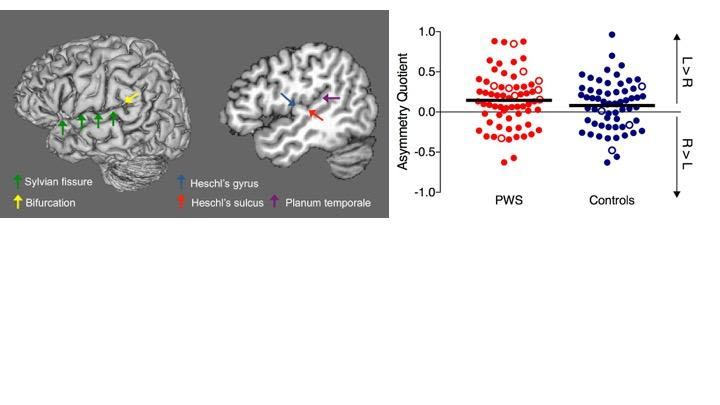 No difference in planum temporale asymmetry in people who stutter