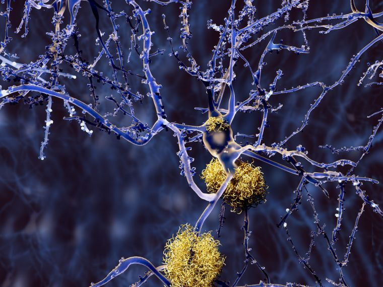 Graphic showing build-up of amyloid plaque between nerve cells in the brain.