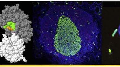 Pediatric Inflammatory Bowel Disease (IBD) & associated rare immune defects