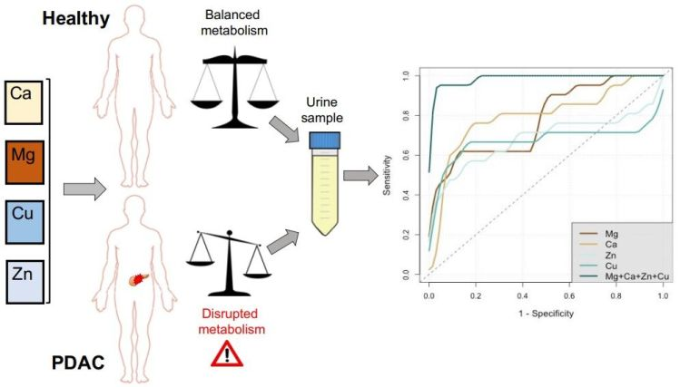 Diagram showing how metals in urine are affected by pancreatic cancer