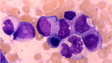 We aim to understand the fundamental biological processes underlying normal and malignant haematopoiesis and translate this to improve patient outcomes through new rational therapies.