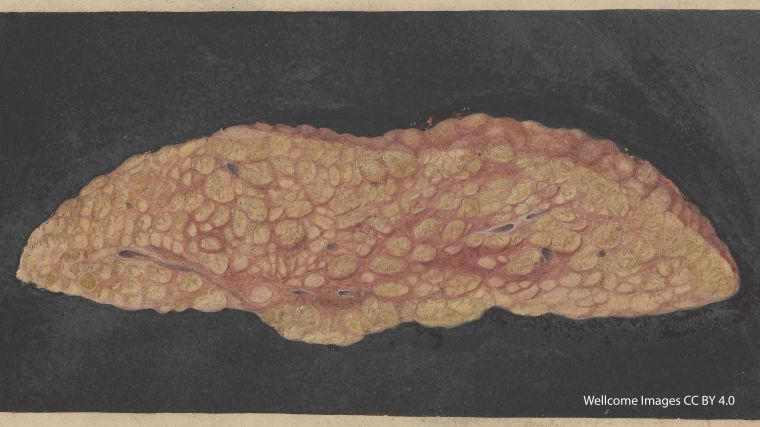 A watercolour image of a cirrhotic liver with fatty deposits