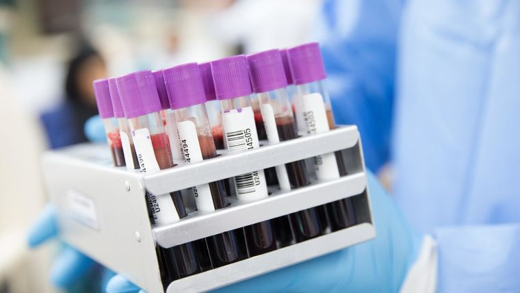 Tubes containing blood to be tested.