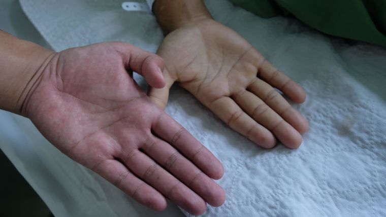 Comparing normal and anaemic hands