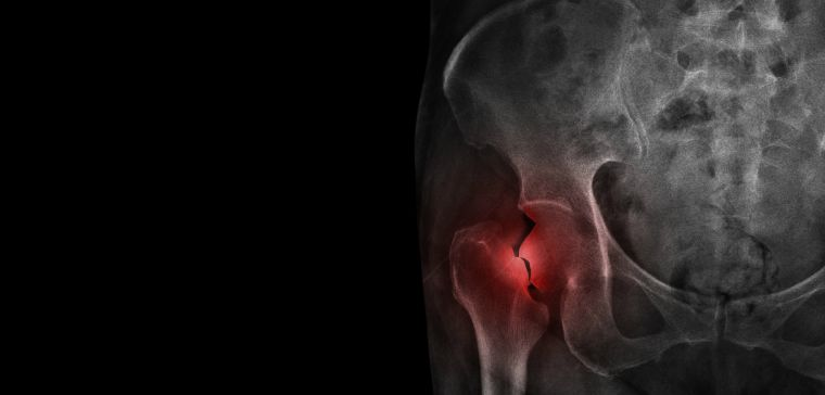 X-ray image of hip fracture.