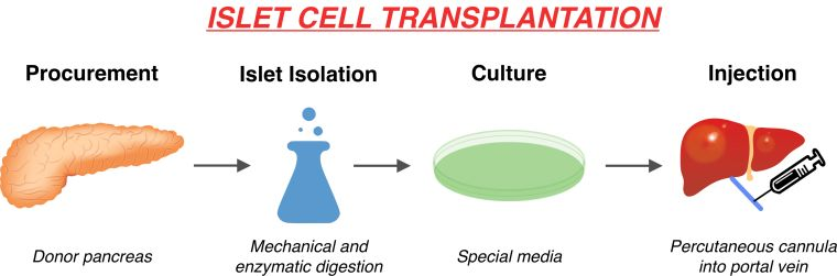 Cover image (Islet cell transplantation) for issue 4 of JNDS
