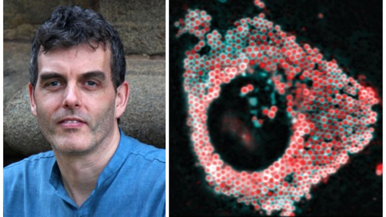 Image of Professor Robin Klemm on left and image of lipid droplets featured on the front cover of the special issue is on the right.