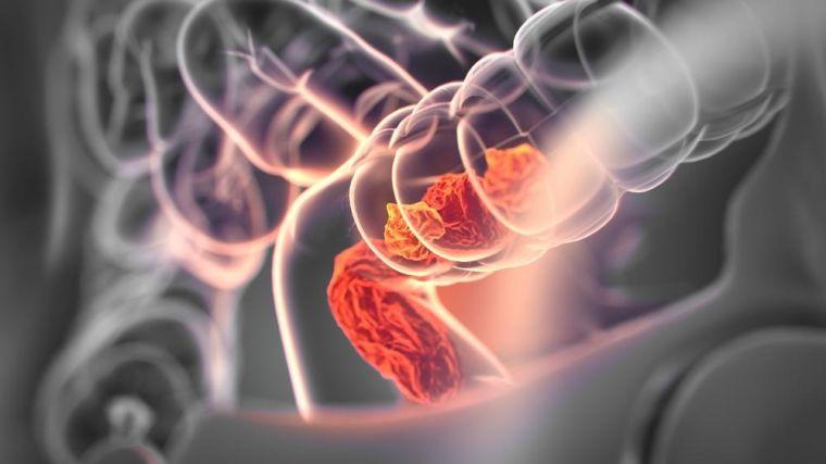Colorectal cancer, medical anatomical illustration, 3D