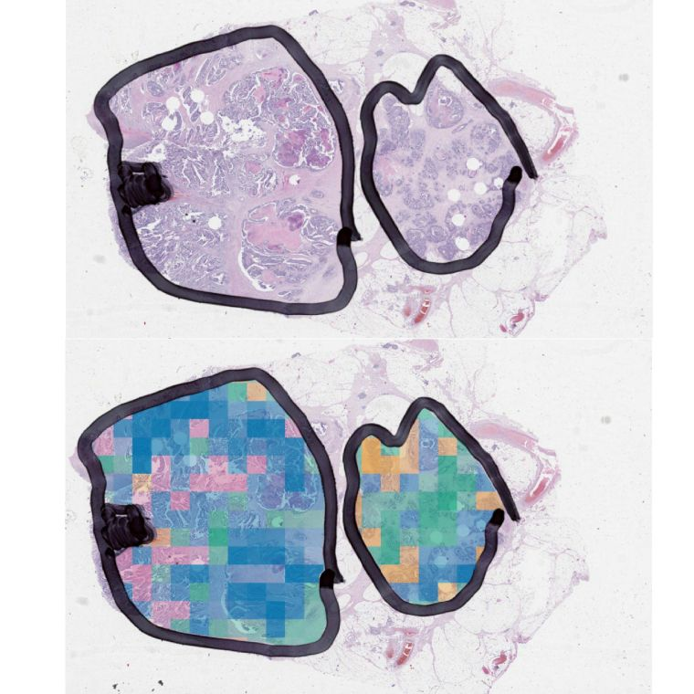 Image information can be used to predict the molecular classification of patient tumour samples in colour, using state-of-the-art deep learning models in pathology
