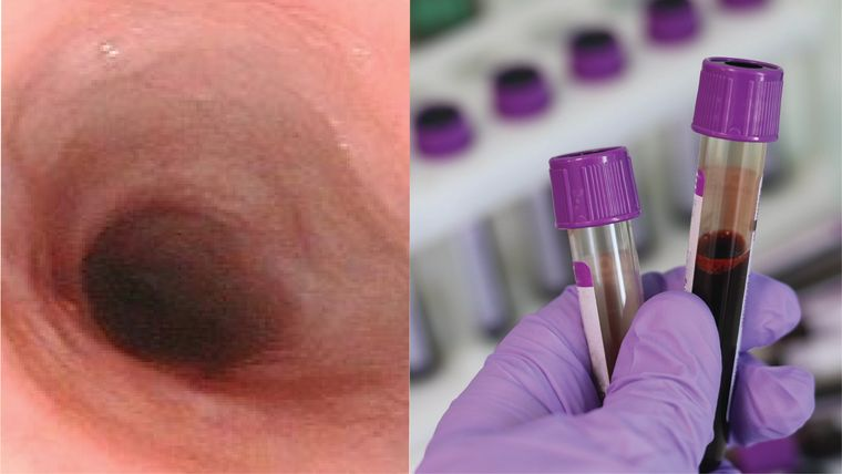 A compiled image of the interior of an oesophagus during an endoscopy and some filled blood test tubes held in a gloved hand.