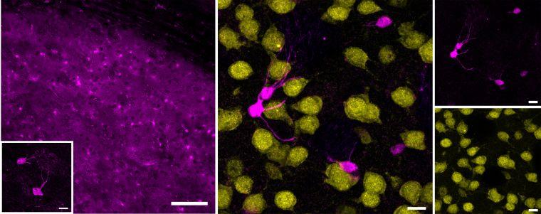 Showing striatal immunofluorescence signals for astrocyte marker S100β and neuronal marker NeuN