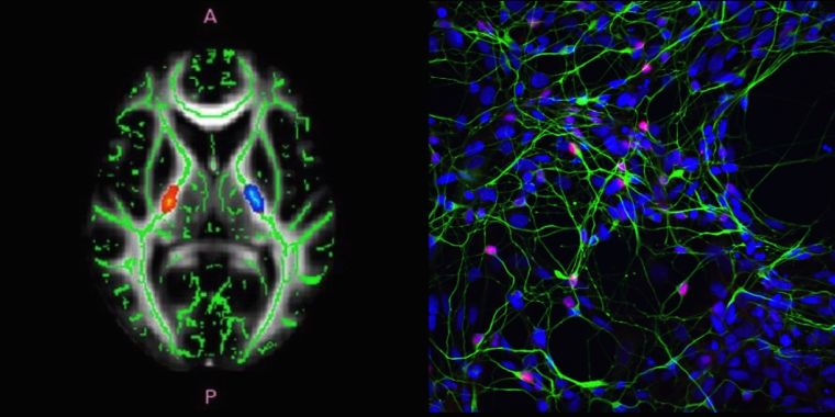 Images of The Oxford Motor Neuron Disease Centre