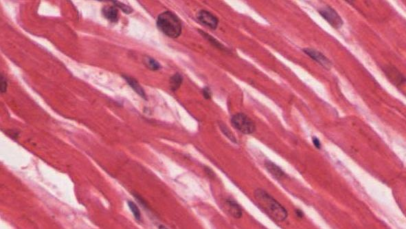 Photomicroph of cardiac muscle tissue