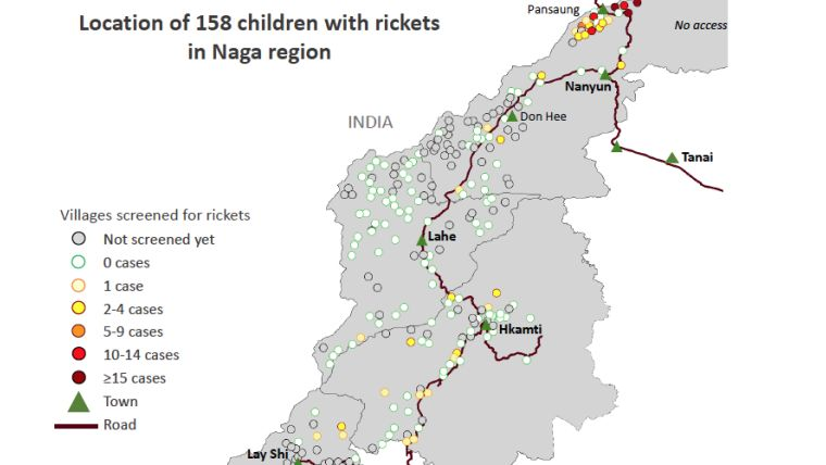 Location of 158 children with rickets in Naga region