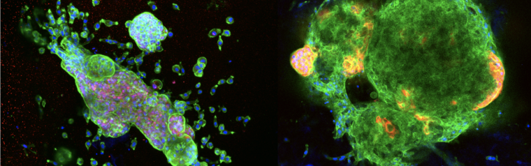 Breast cancer cells grown in the new hydrogel technology
