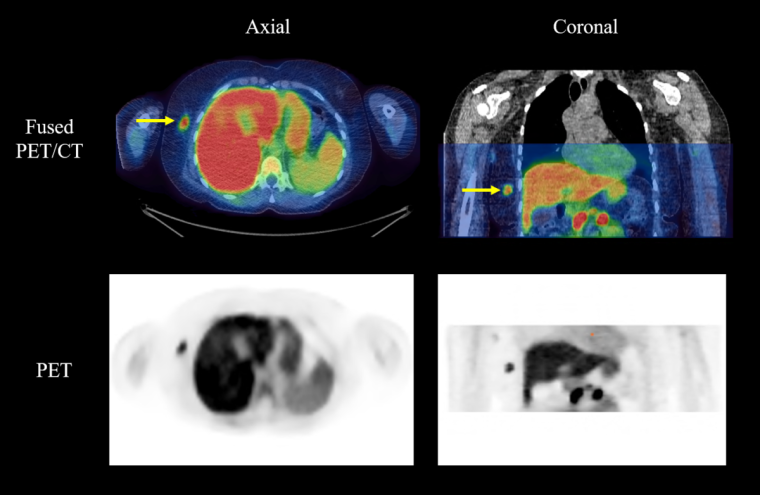 An example of how Fluciclovine appears in colour on PET-CT scans, with yellow arrows pointing towards the tumour