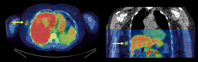 Cross-section scan of a patient's abdomen. The breast cancer appears in bright colours as a result of the new technology