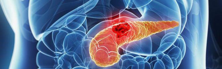 Pancreatic Cancer Imagery