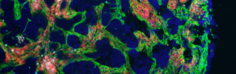 A scan and visualisation of the Extracellular Matrix