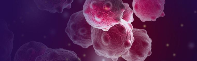 Stock image of cancer cells