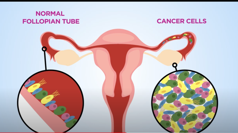 Our work explores the molecular mechanisms that drive Ovarian Cancer cell growth and examines which targeted therapies can be utilised to improve the treatment of women with Ovarian Cancer.