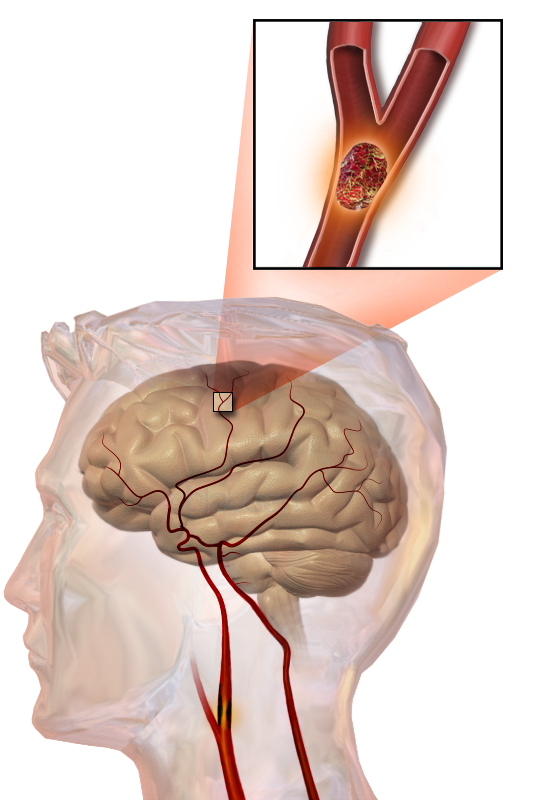 Illustration of stroke anatomy