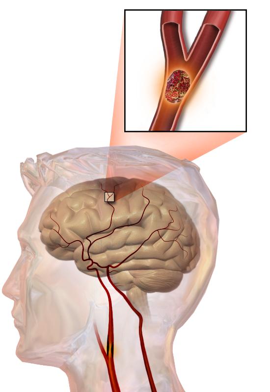 Illustration of stroke anatomy