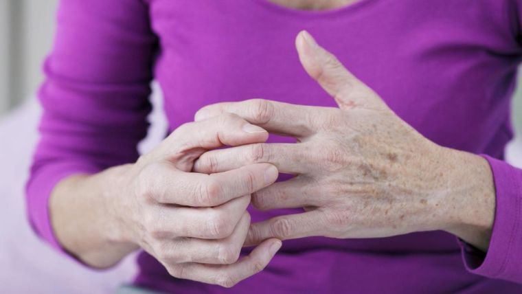 A women with hand osteoarthritis rubs her hands together