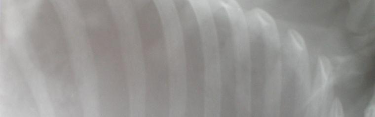 X-ray of ribs