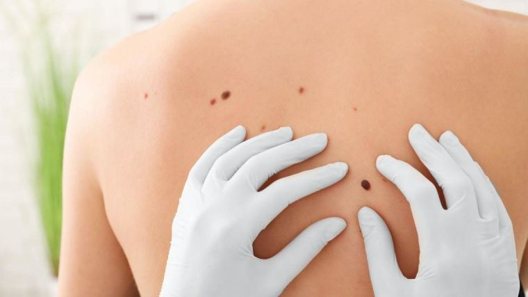 A doctor looks at the moles on someone's back