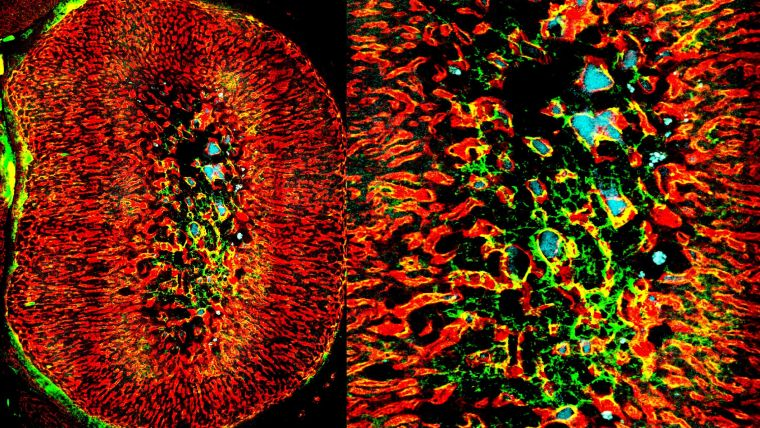 High-resolution 3D image, tile scan (l) and medulla region (r) of an adrenal gland showing blood vessels (red) and perivascular cells (green and blue)