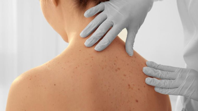 A doctor examines moles on a woman's back