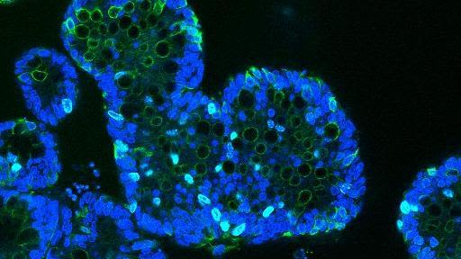 Research identifies how the gut loses protective barrier function in ibd