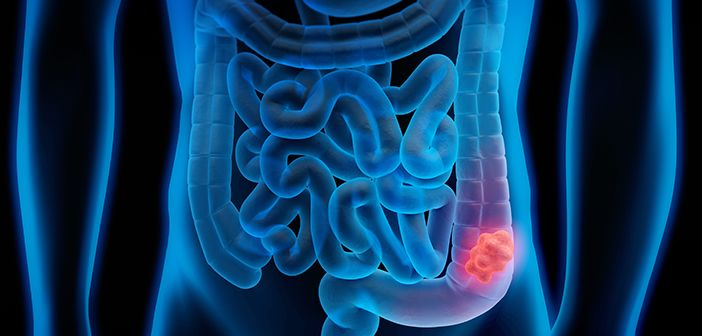 X-ray like image of human intestines with area where cancer occurs shown in a different colour.