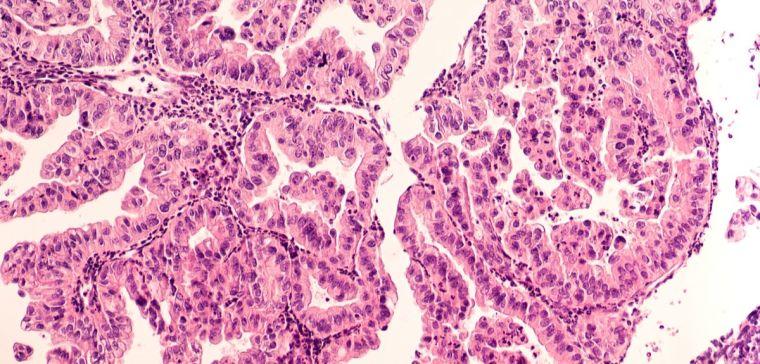 Micrograph of a serous papillary carcinoma (adenocarcinoma) of ovary, with intricately branching papillae