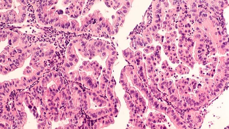 Micrograph of a serous papillary carcinoma (adenocarcinoma) of ovary, with intricately branching papillae