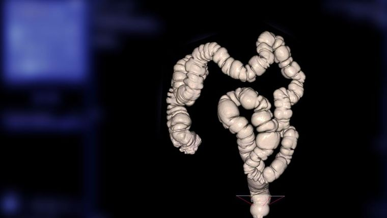 A Computed tomography Colonogrpahy scan - a 3d scan of a person colon