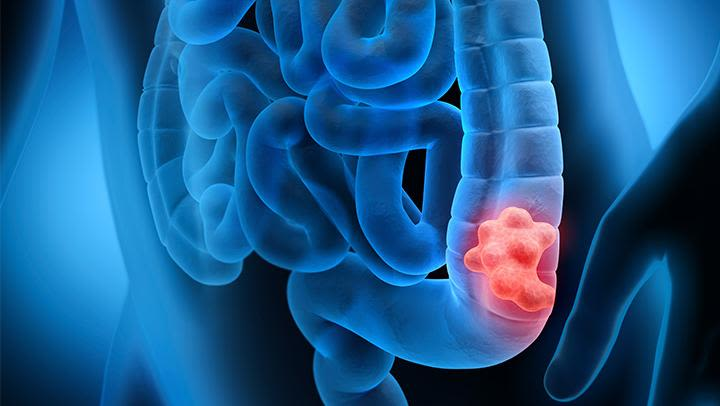 Bowel Cancer highlighted in the body