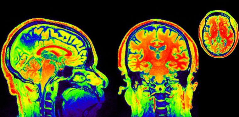 Defending the brain